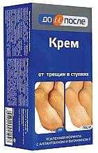 Kup Krem na popękane stopy - Do i Posle Foot Cream