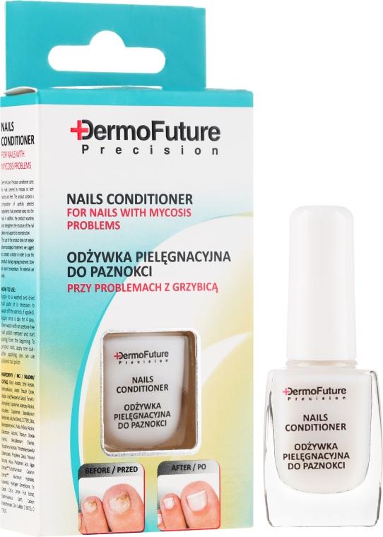 Terapia przeciw grzybicy paznokci - DermoFuture Fungal Nail Infection Treatment